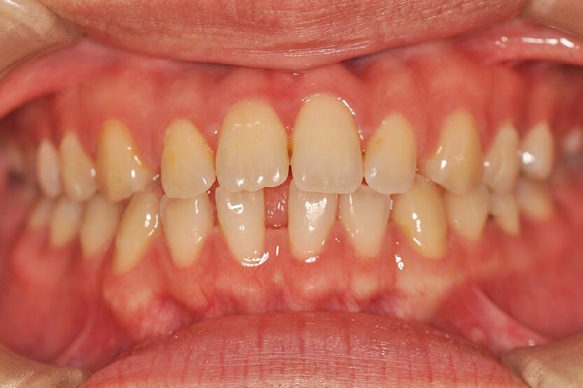 空隙歯列(非抜歯)