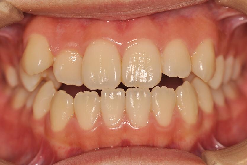 上顎前歯部叢生、開咬(非抜歯)