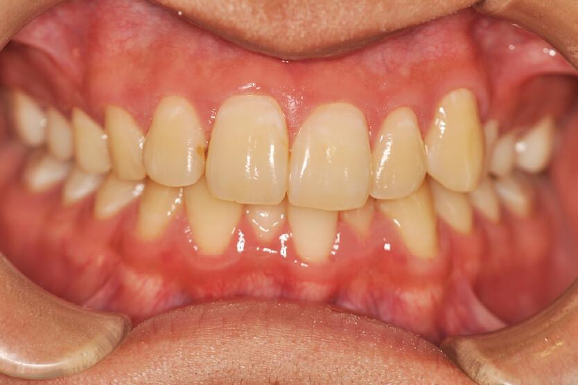 上顎前突、叢生、過蓋咬合(非抜歯)
