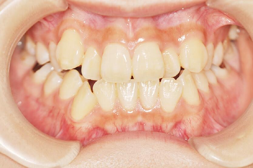 下顎前突、上顎前歯部反対咬合(非抜歯)